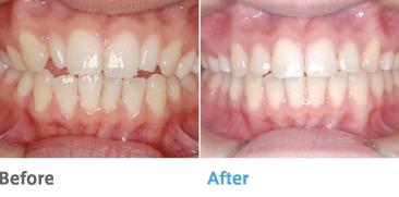症例(前歯で噛めない)
